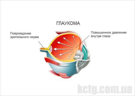 глаукома что это