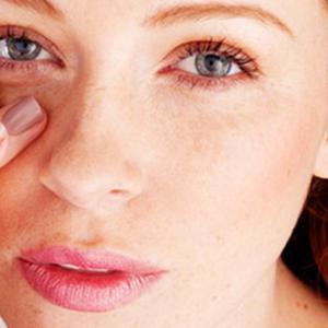 Как снять отёчность с глаз в домашних условиях 340