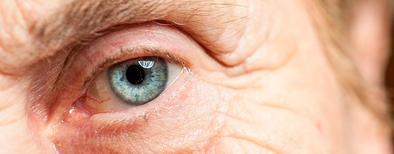 PMMC-intraocular-lensesя
